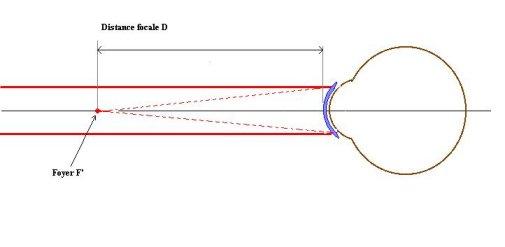 eea8d82e3a53fb Dans ce deuxième schéma, le même oeil est à présent corrigé par une lentille  de contact. L image d un point situé au loin est au foyer F  de la lentille.